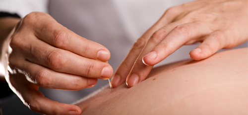 acupuncturist dallas plano carrollton